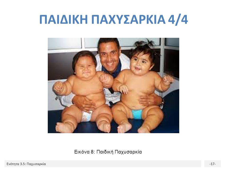 ΠΑΙΔΙΚΗ ΠΑΧΥΣΑΡΚΙΑ 4/4 Εικόνα 8: Παιδική Παχυσαρκία