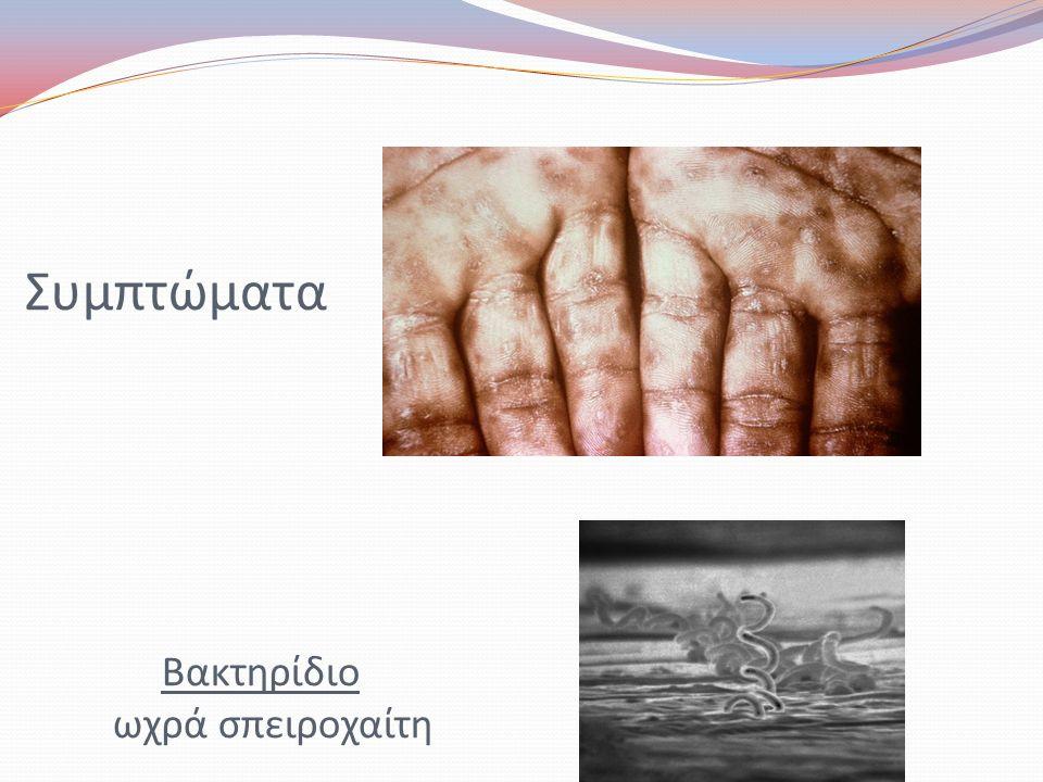 Συμπτώματα Βακτηρίδιο ωχρά σπειροχαίτη