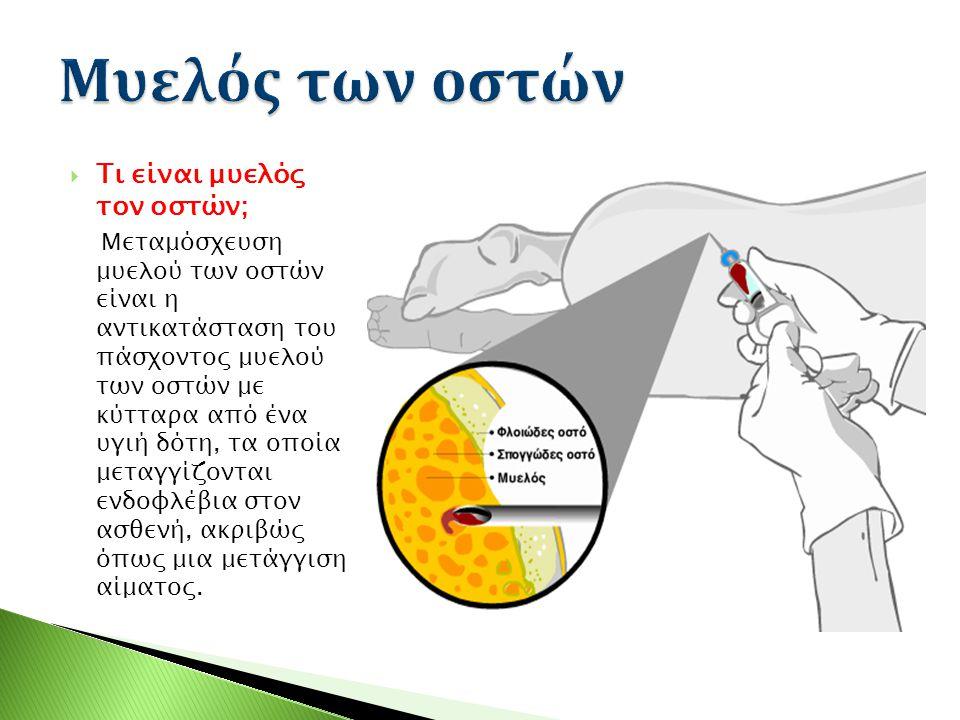Μυελός των οστών Τι είναι μυελός τον οστών;