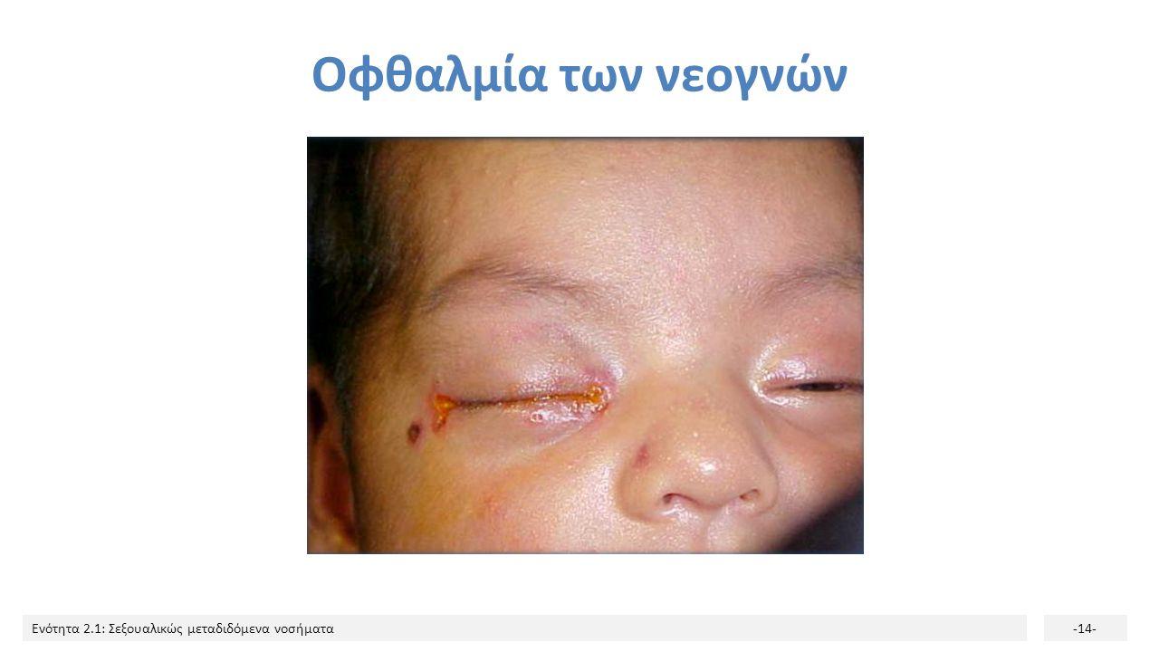 Οφθαλμία των νεογνών