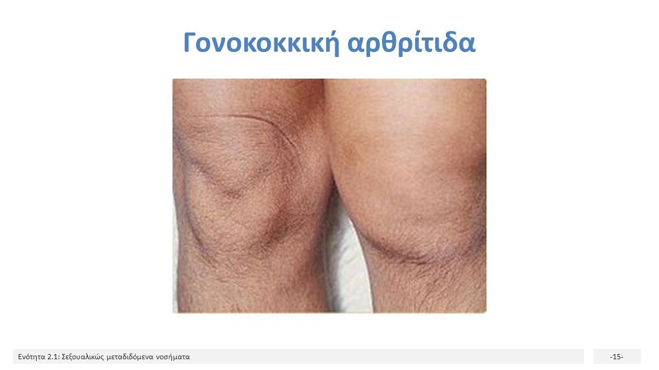 Γονοκοκκική αρθρίτιδα
