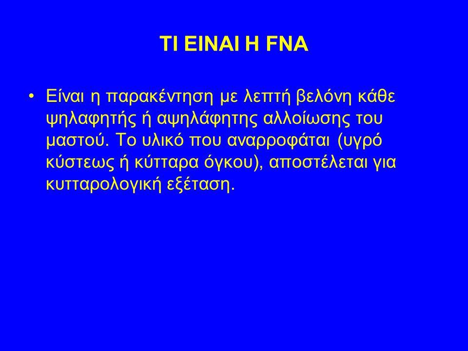 TI EINAI H FNA