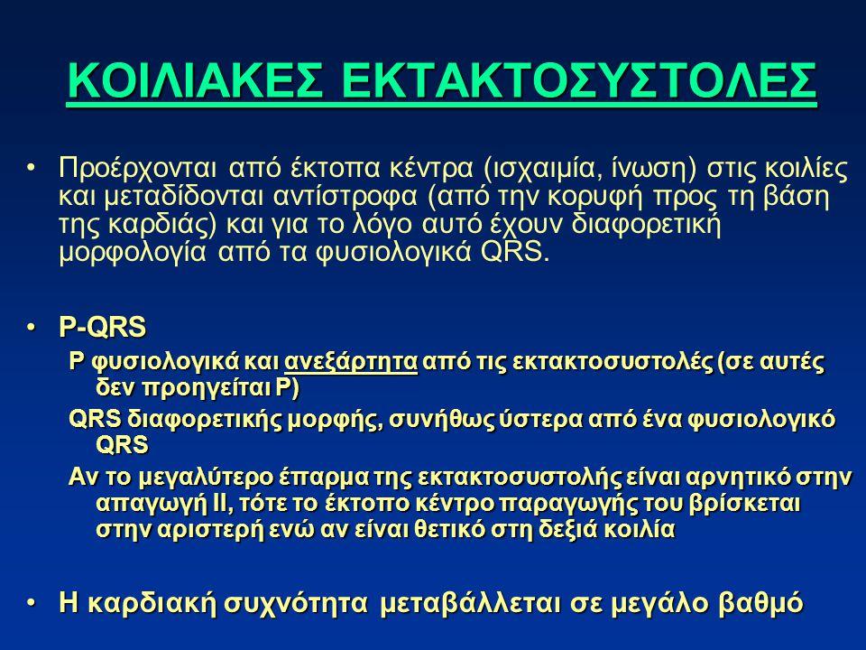ΚΟΙΛΙΑΚΕΣ ΕΚΤΑΚΤΟΣΥΣΤΟΛΕΣ