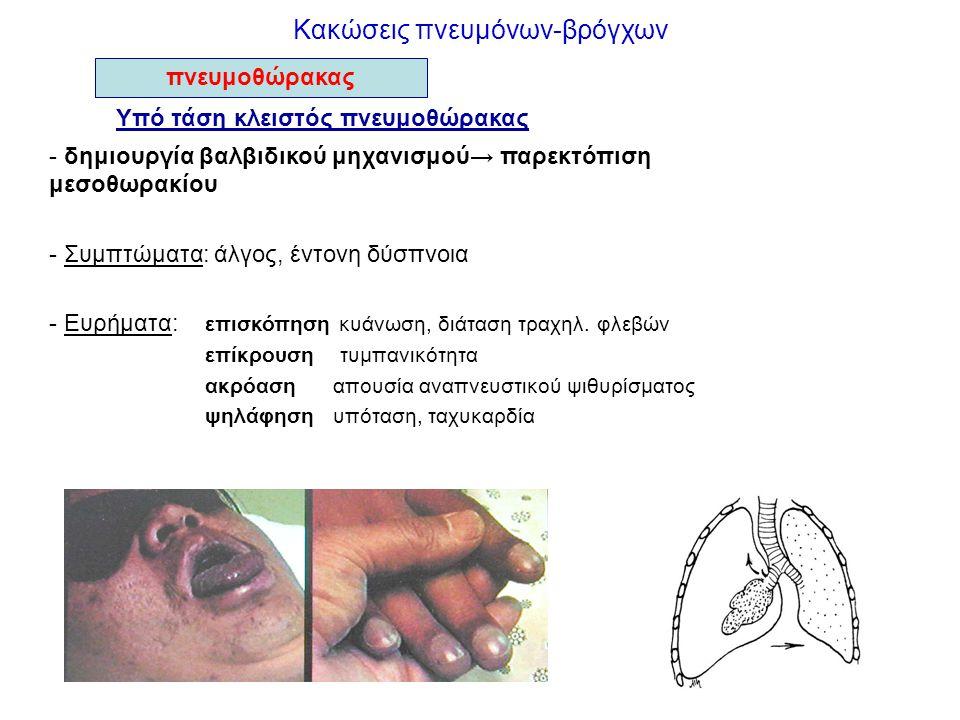 Κακώσεις πνευμόνων-βρόγχων