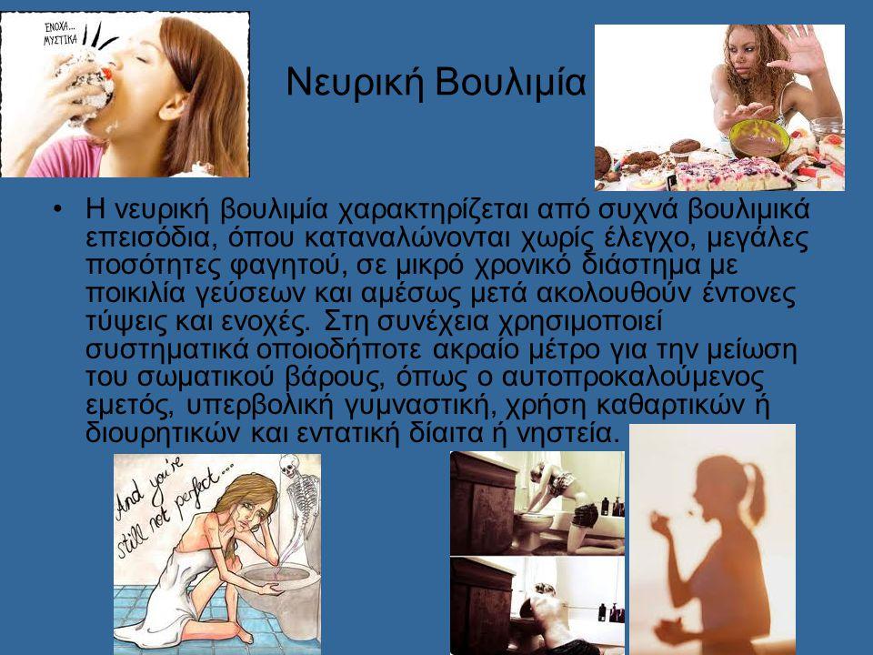 Νευρική Βουλιμία