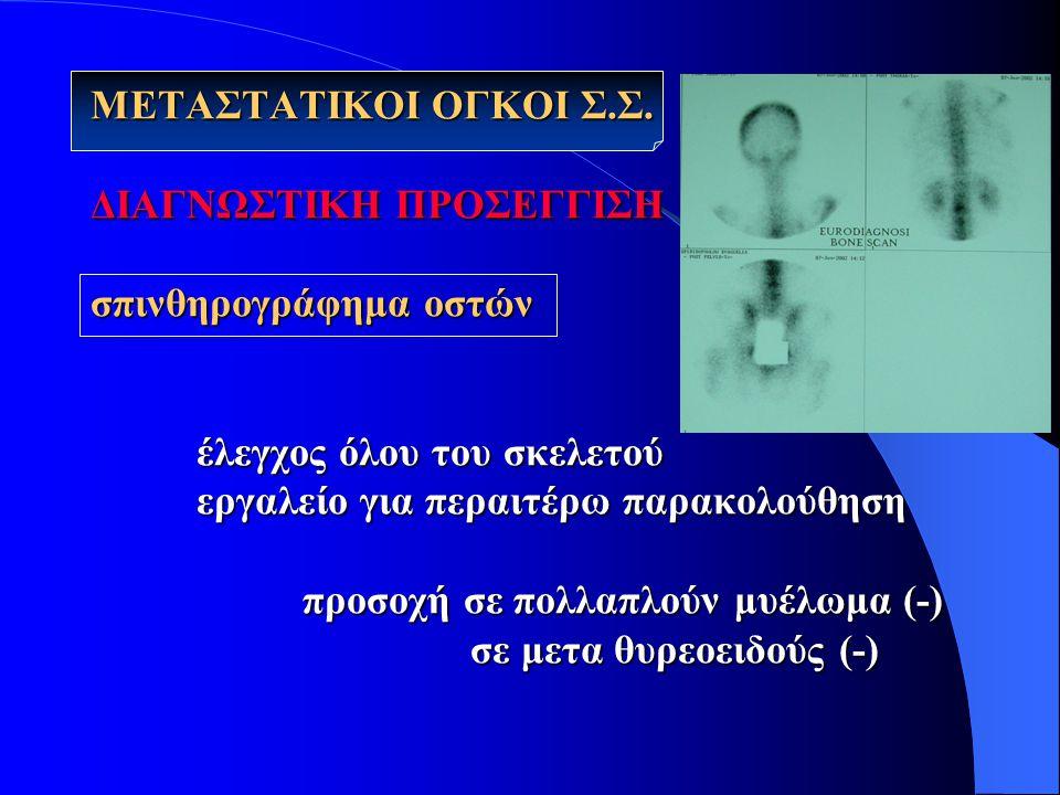ΜΕΤΑΣΤΑΤΙΚΟΙ ΟΓΚΟΙ Σ. Σ. ΔΙΑΓΝΩΣΤΙΚΗ ΠΡΟΣΕΓΓΙΣΗ σπινθηρογράφημα οστών