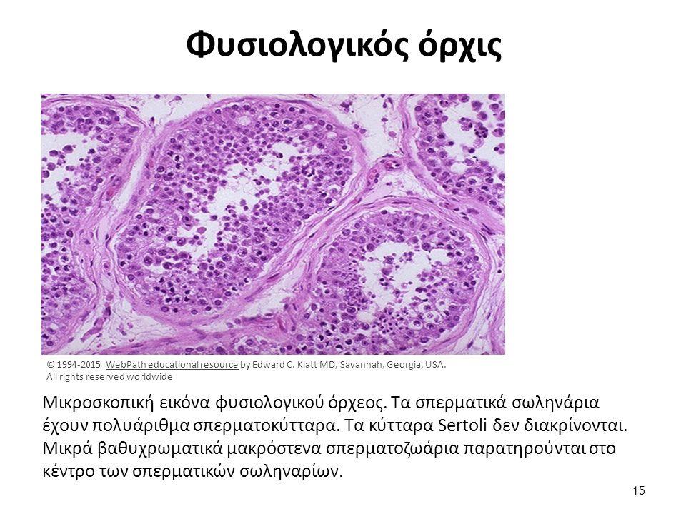 Leyding κύτταρα