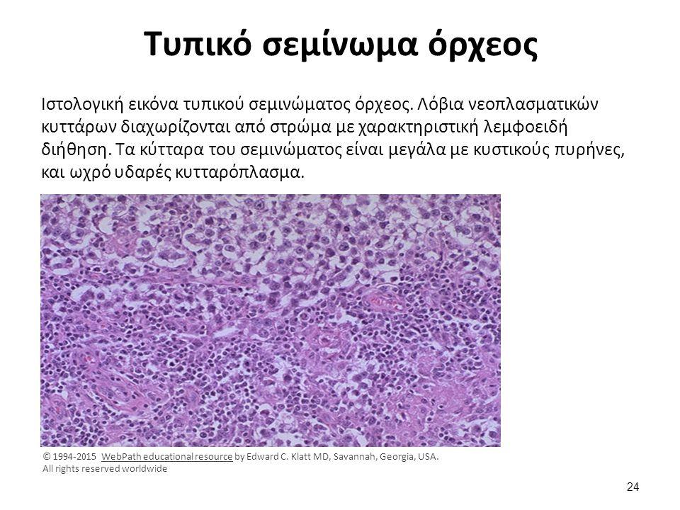 Μικρός καρκίνος όρχεος