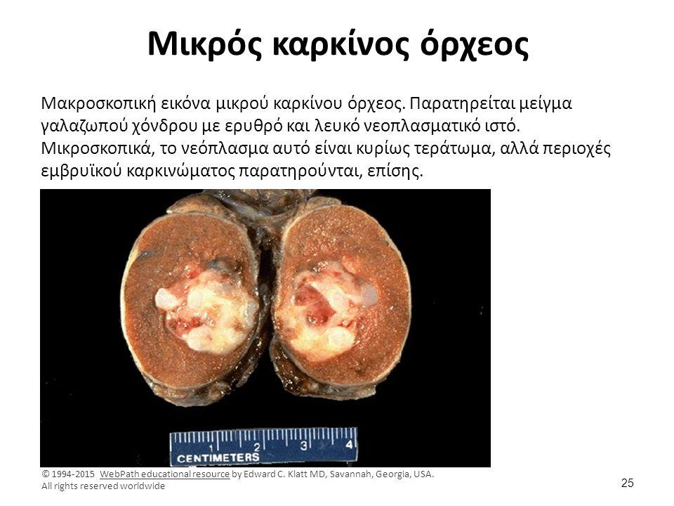 Εμβρυϊκό καρκίνωμα όρχεος