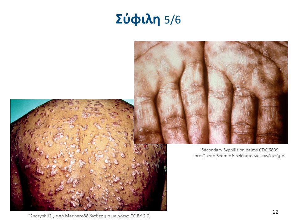 Σύφιλη 6/6 Infiltration of skin due to endemic syphilis , από Oaktree b διαθέσιμο ως κοινό κτήμα