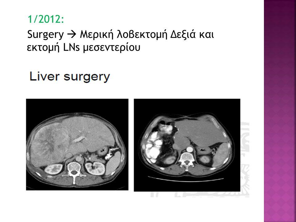 1/2012: Surgery  Μερική λοβεκτομή Δεξιά και εκτομή LNs μεσεντερίου
