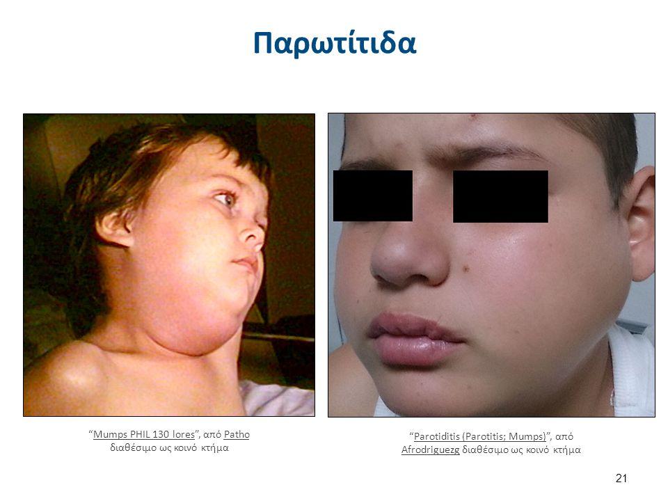 Ανεμευλογία (Varicella, Chichenpox)