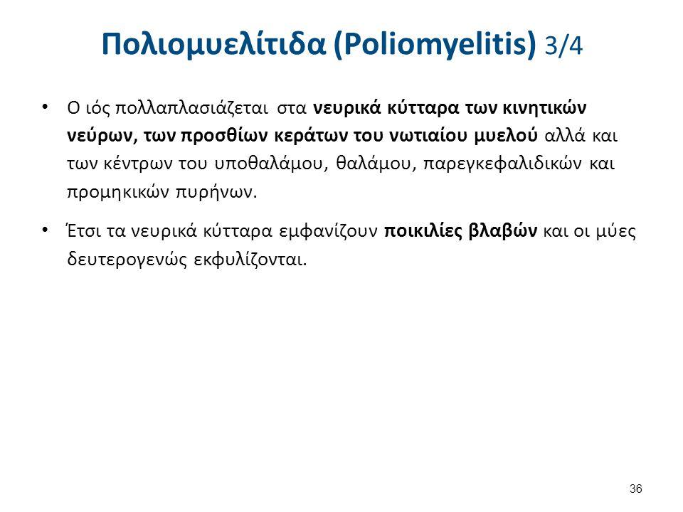 Πολιομυελίτιδα (Poliomyelitis) 4/4