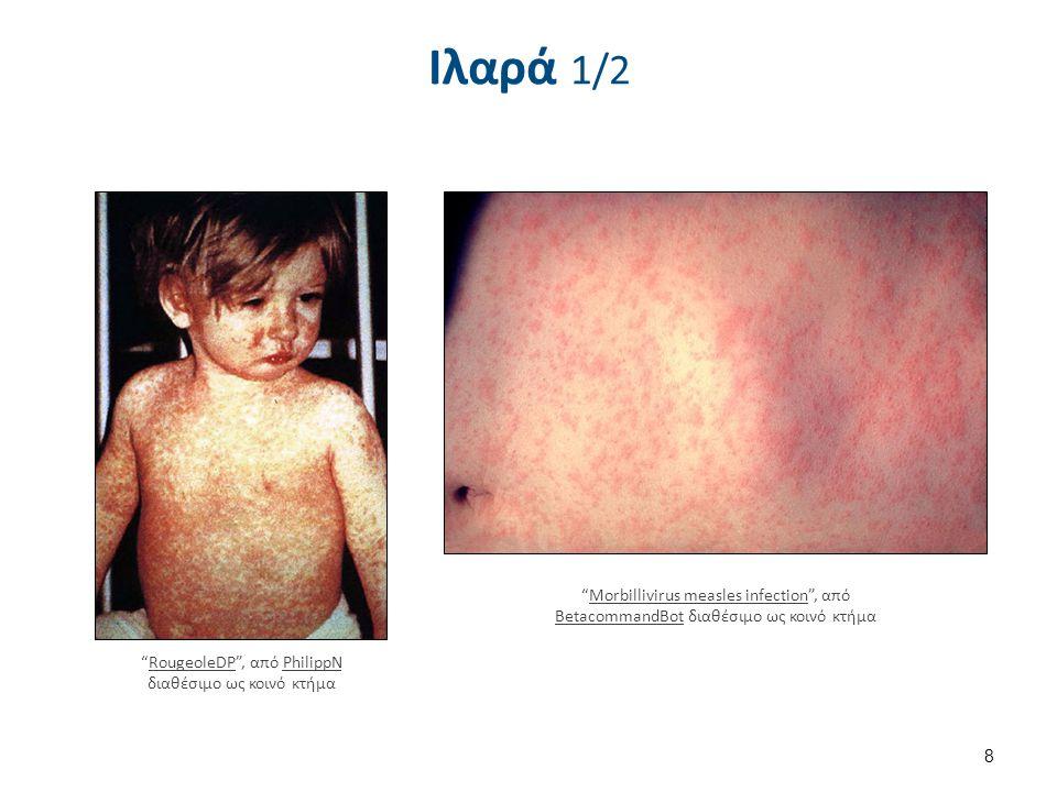 Ιλαρά 2/2 Koplik spots, measles 6111 lores , από Patho διαθέσιμο ως κοινό κτήμα.
