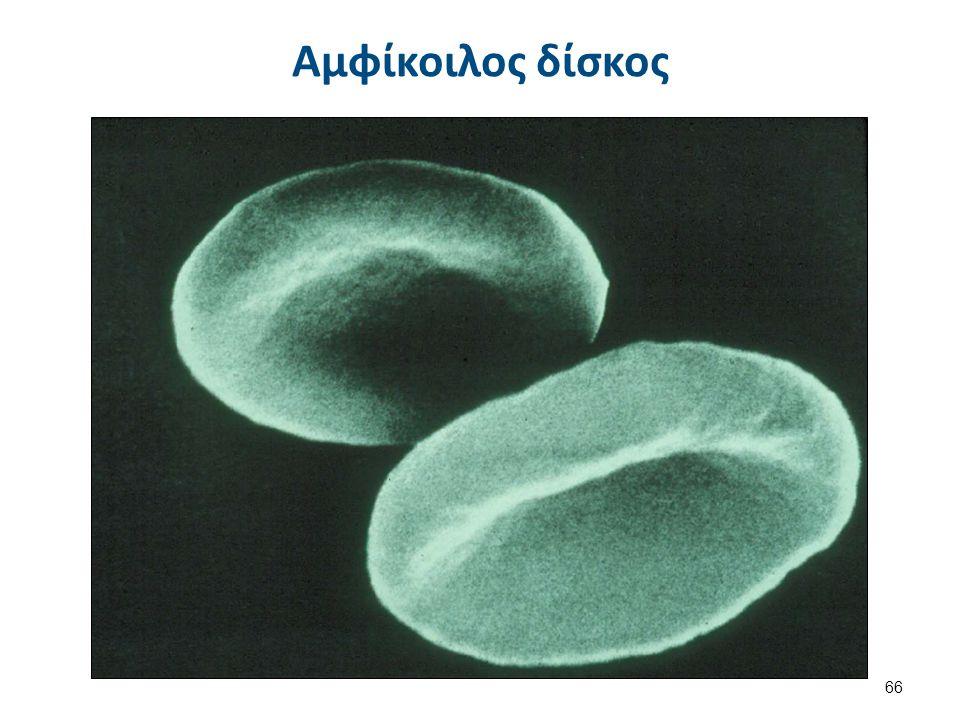 Ελλειπτοκυττάρωση