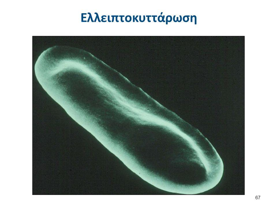 Σφαιροκυττάρωση