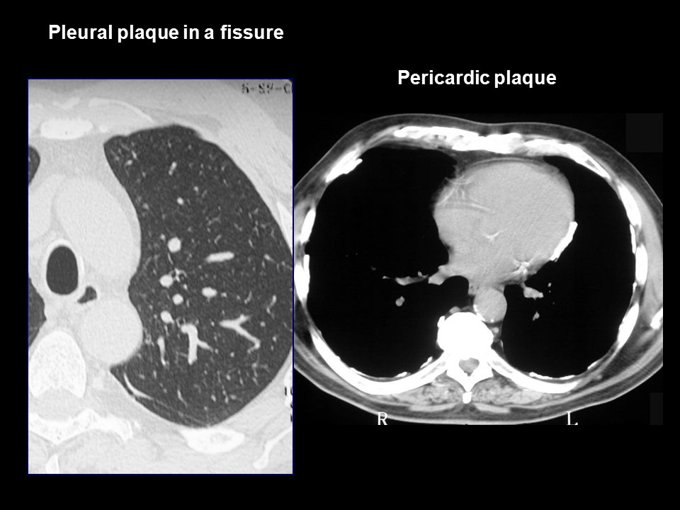 Pleural plaque in a fissure