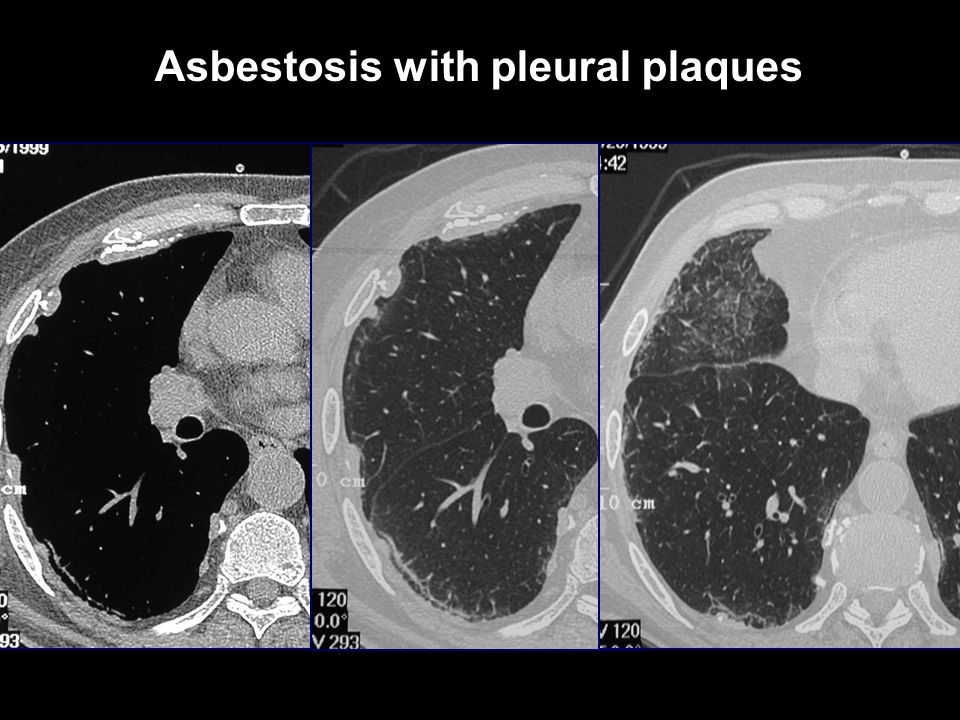 Asbestosis with pleural plaques