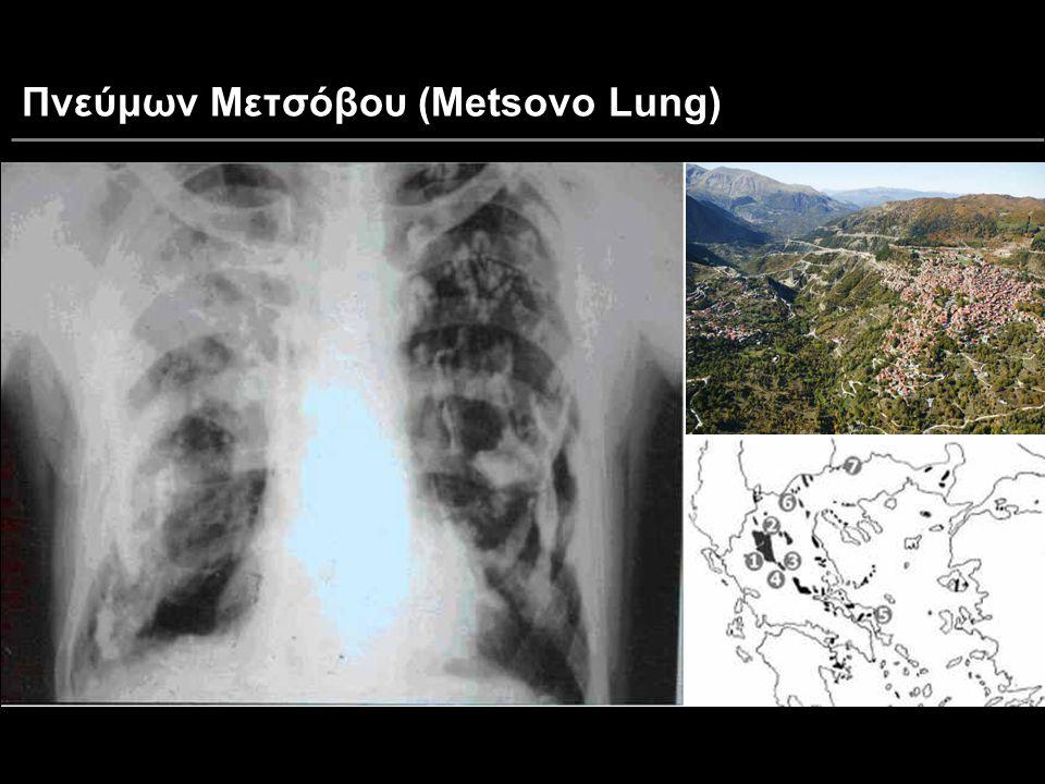 Πνεύμων Μετσόβου (Metsovo Lung)