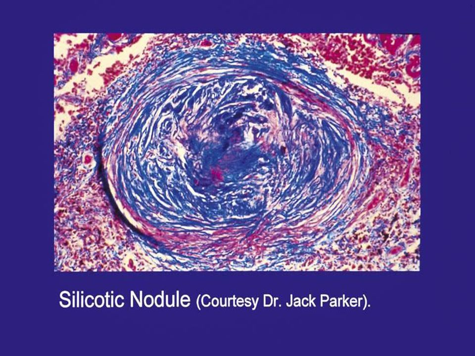 Silicotic nodule: it is characterized by a cell-free central area of concentrically arranged, whorled hyalinized collagen fibers, surrounded by cellular connective tissue with reticulin fibers.