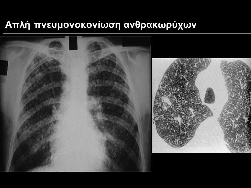 Απλή πνευμονοκονίωση ανθρακωρύχων