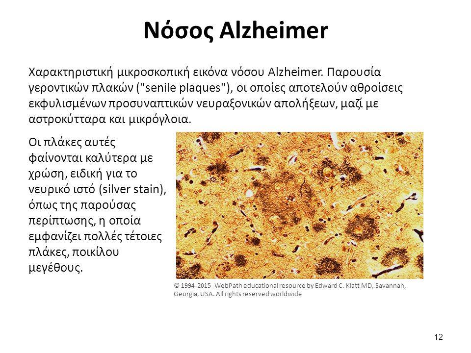 Πλάκες της νόσου Alzheimer
