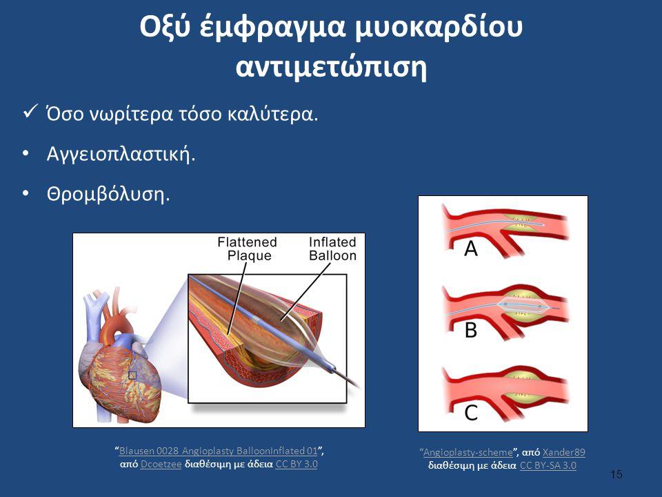 Αγγειοπλαστική στεφανιαίων αρτηριών και τοποθέτηση stent