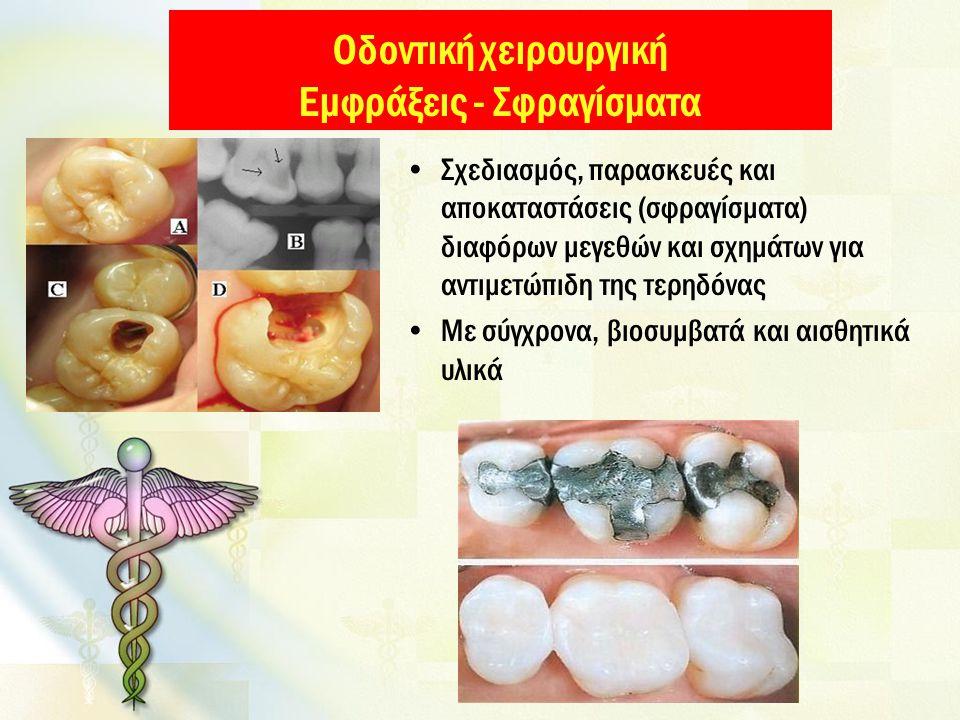 Οδοντική χειρουργική Εμφράξεις - Σφραγίσματα