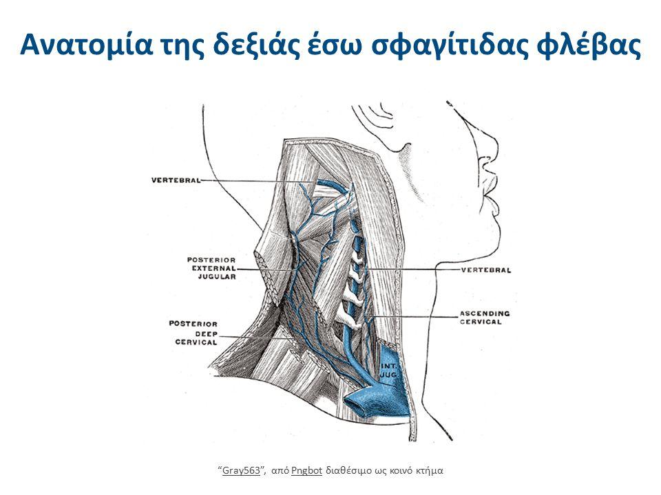 Τοποθέτηση ΚΦΚ στην έσω σφαγίτιδα