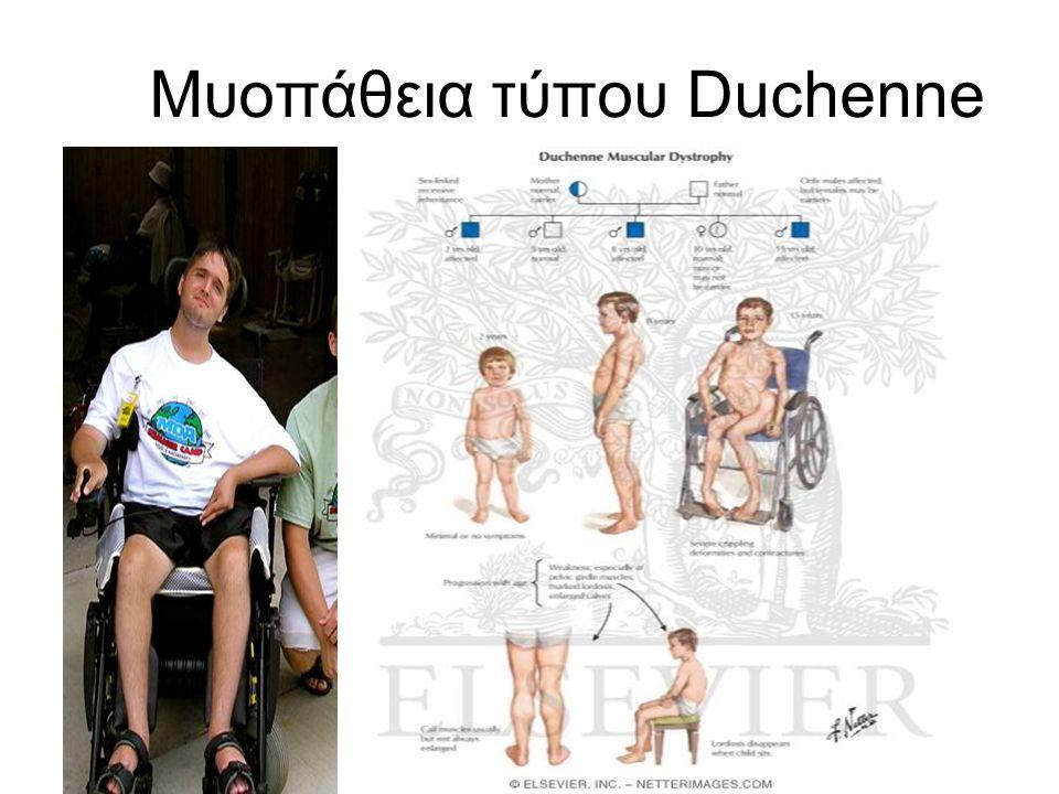 Μυοπάθεια τύπου Duchenne