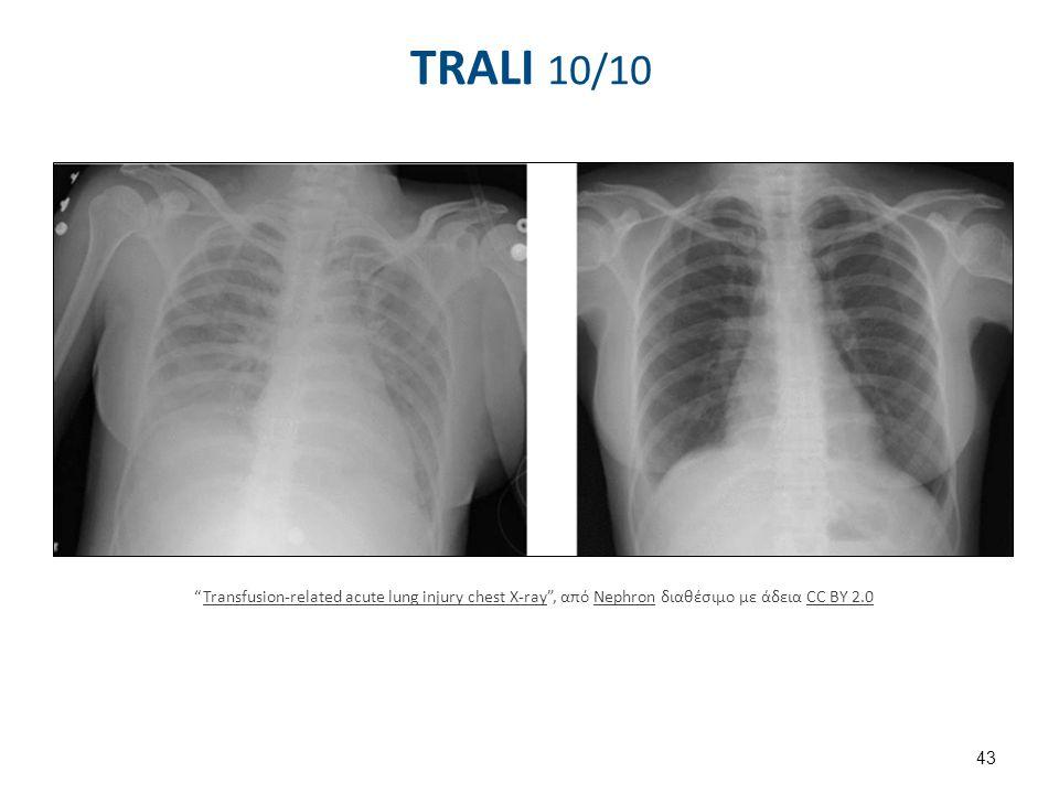 TRALI - Θεραπεία Η θεραπεία είναι συμπτωματική.