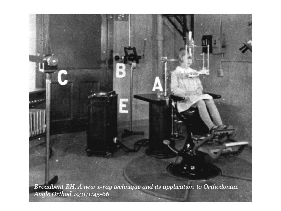 από το άρθρο του Broadbent 1931.