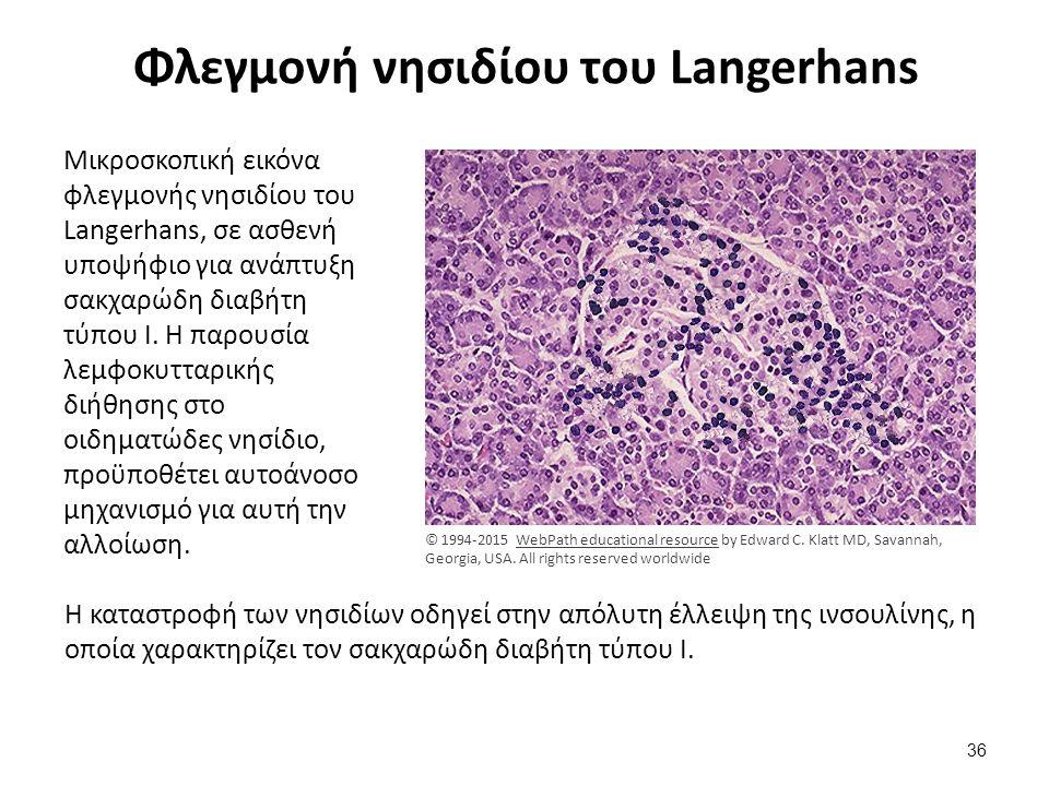 Νησίδιο του Langerhans εναπόθεση αμυλοειδούς
