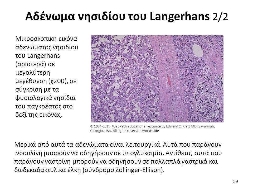 Ινσουλίνωμα Ανοσοϊστοχημική χρώση για την ινσουλίνη σε αδένωμα νησιδίου του Langerhans (καφέ κύτταρα). Το αδένωμα αυτό, είναι ένα ινσουλίνωμα.