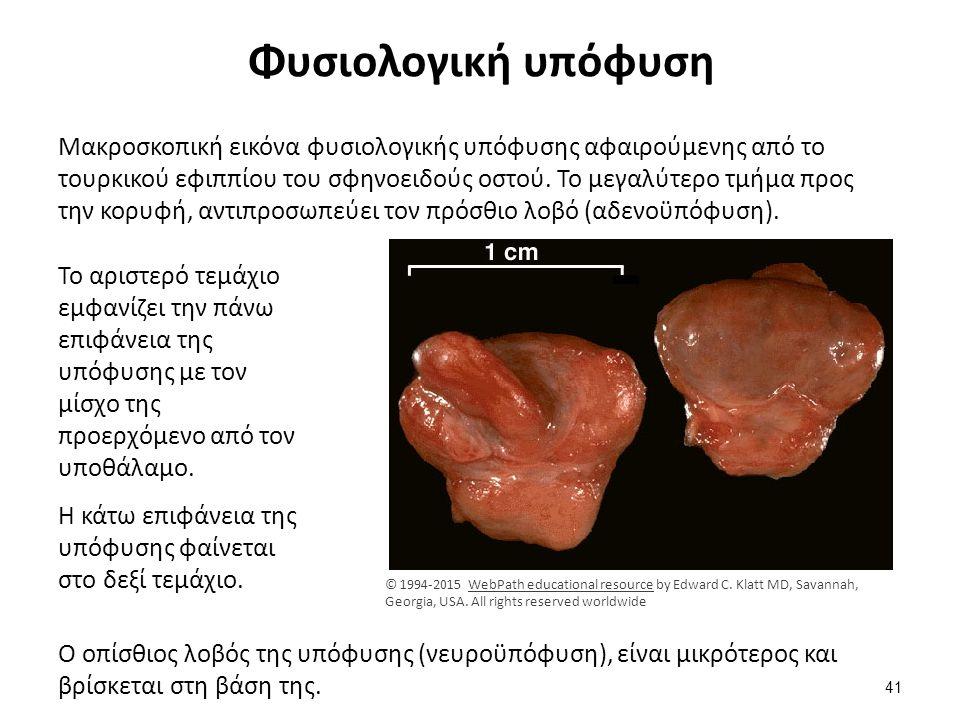 Φυσιολογικός υποφυσιακός ιστός