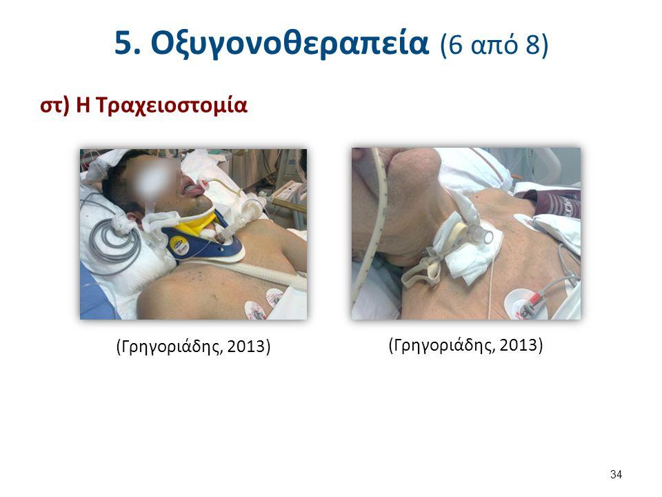 5. Οξυγονοθεραπεία (7 από 8)