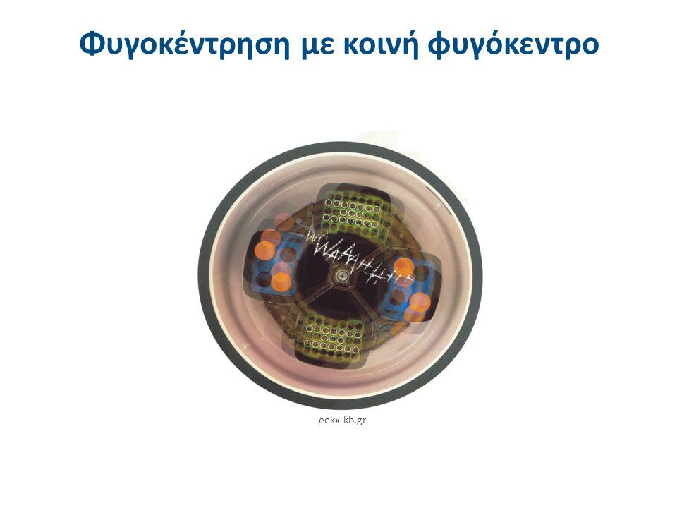 Φυγοκέντρηση ούρων Urine Centrifugation από Petef διαθέσιμο με άδεια CC BY-SA 3.0