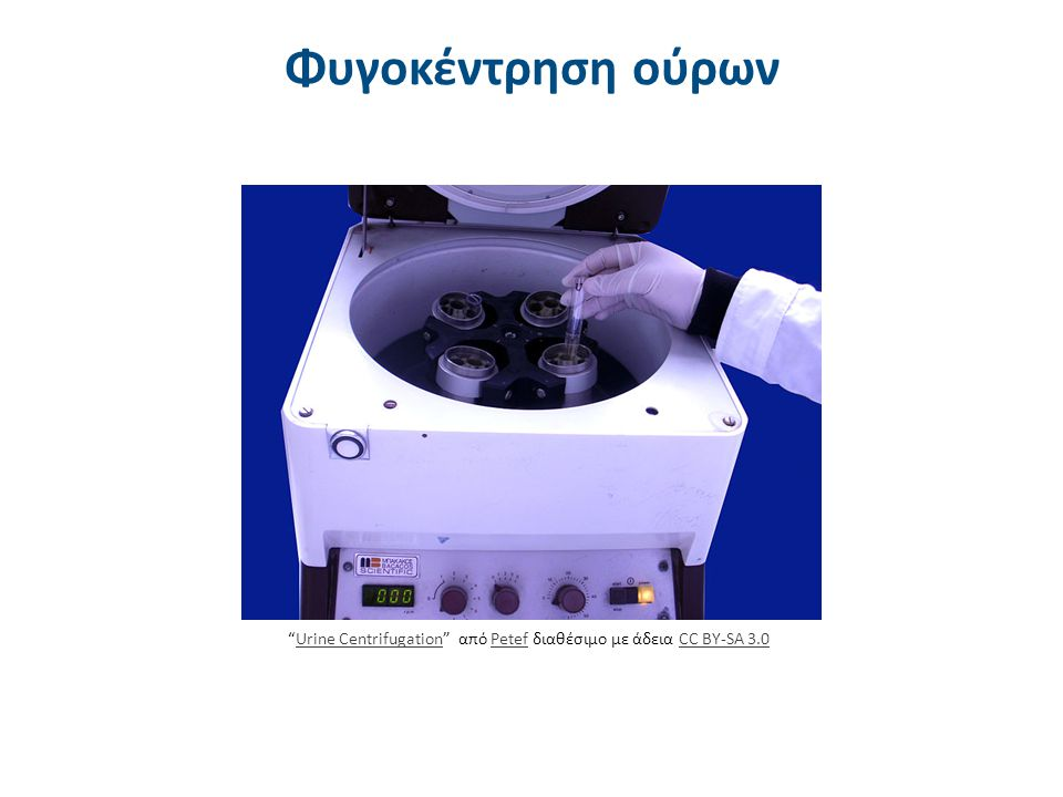 Διαδικασία φυγοκέντρησης