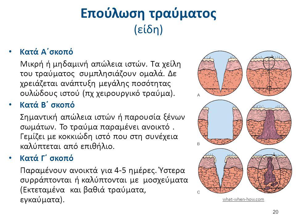 Επούλωση τραύματος (Φάσεις επούλωσης)