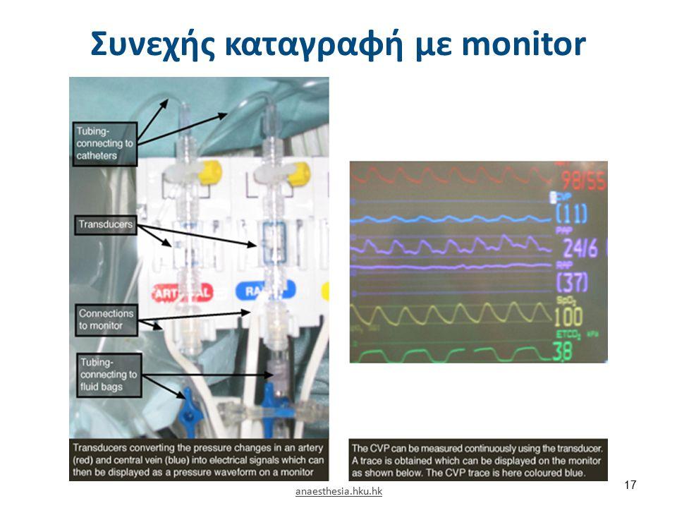 Μέτρηση με στήλη ύδατος (Φ.Τ. 8-15 cm H2o)