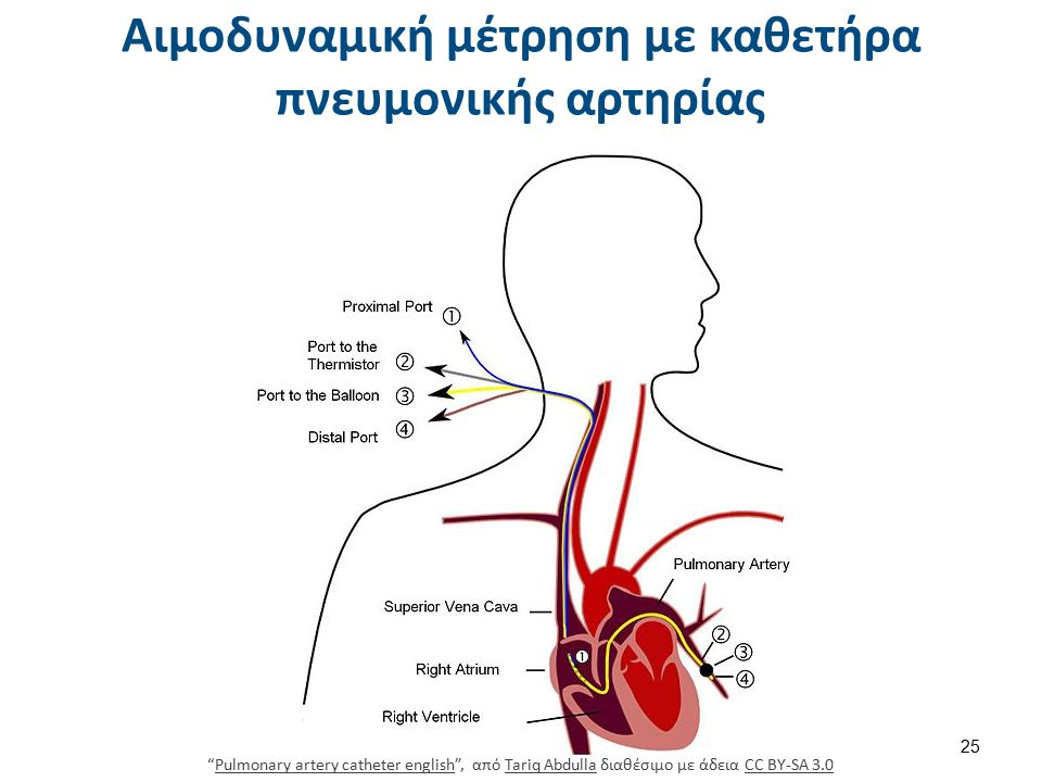 Κυματομορφές του καθετήρα πνευμονικής αρτηρίας