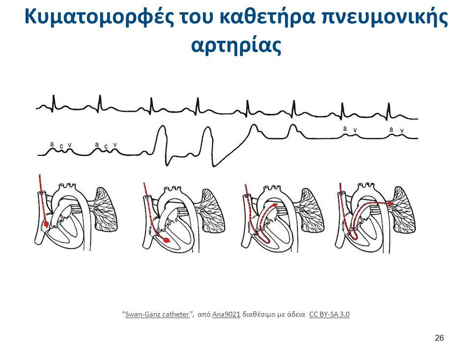 Βιβλιογραφία Princilla Lemone, Karen Burke, Παθολογική-Χειρουργική Νοσηλευτική, τομ. 3, Ιατρ. Εκδ. Δ. Λαγός, Αθήνα 2004.