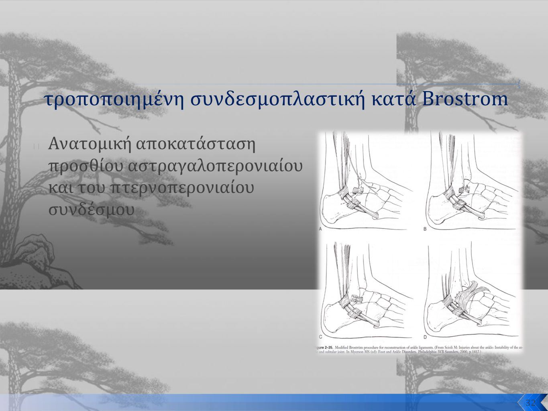τροποποιημένη συνδεσμοπλαστική κατά Brostrom