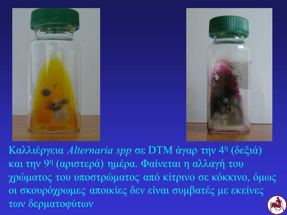 Καλλιέργεια Alternaria spp σε DTM άγαρ την 4η (δεξιά) και την 9η (αριστερά) ημέρα.