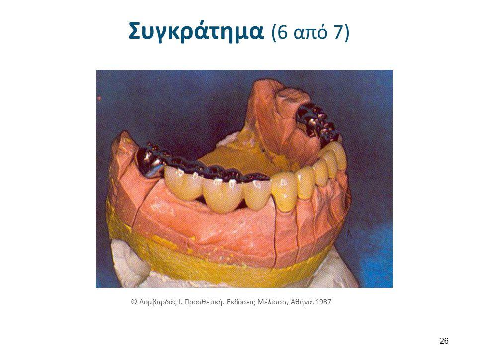 Συγκράτημα (7 από 7) © Τσούτσος Α, Ανδριτσάκης Δ. Ακίνητη κλινική Προσθετική – Έγχρωμος Άτλαντας.