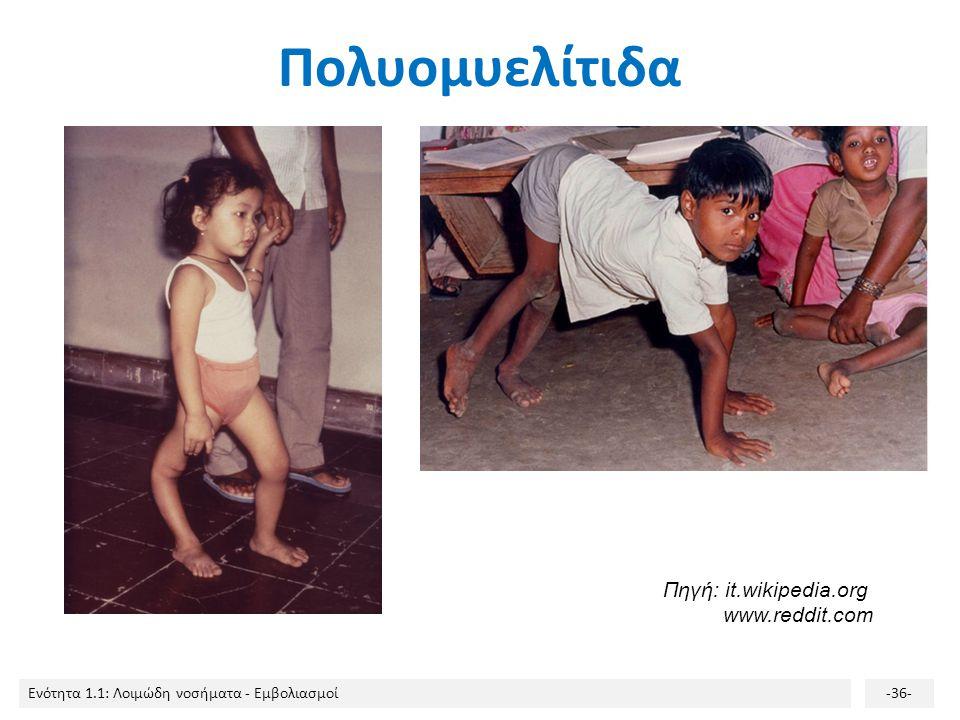 Πολυομυελίτιδα Πηγή: it.wikipedia.org www.reddit.com
