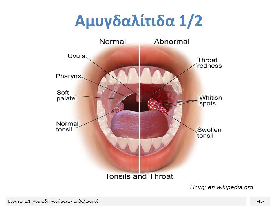 Αμυγδαλίτιδα 1/2 Πηγή: en.wikipedia.org