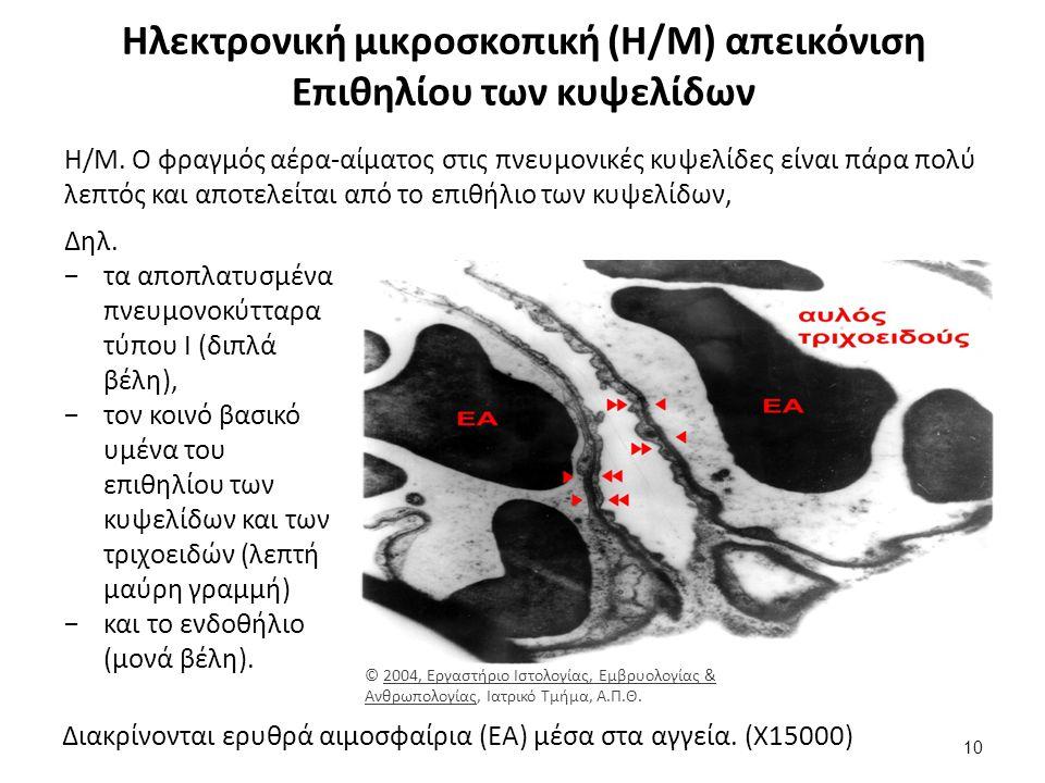 Ιστολογική εικόνα βλεννογόνου ρινικής κοιλότητος