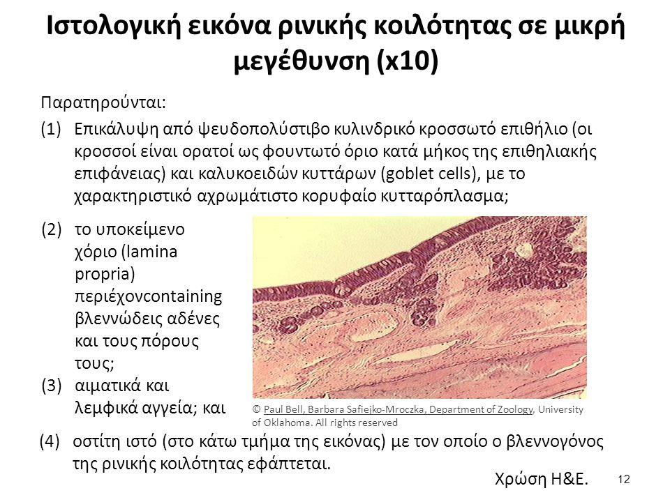 Ιστολογική εικόνα φαρυγγικής αμυγδαλής σε μικρή μεγέθυνση (x10)
