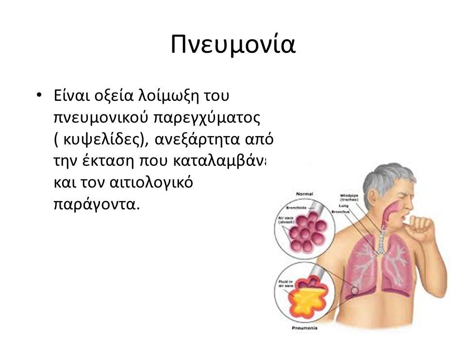 Πνευμονία Είναι οξεία λοίμωξη του πνευμονικού παρεγχύματος ( κυψελίδες), ανεξάρτητα από την έκταση που καταλαμβάνει και τον αιτιολογικό παράγοντα.